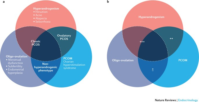 Polycystic Ovary Syndrome Definition Aetiology Diagnosis And Treatment Nature Reviews Endocrinology