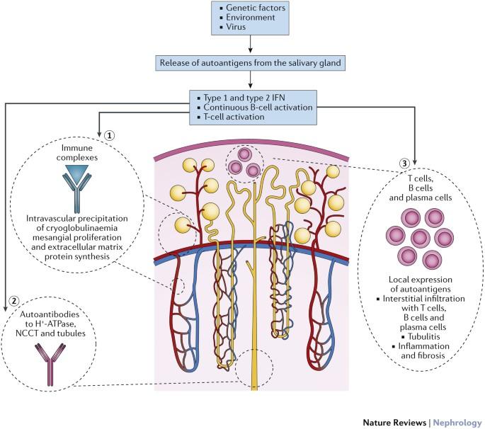 Renal Involvement In Primary Sjogren Syndrome Nature Reviews Nephrology