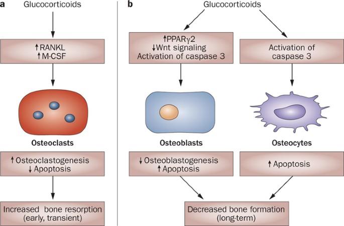 Steroid induced bone loss organon coaching aligarh