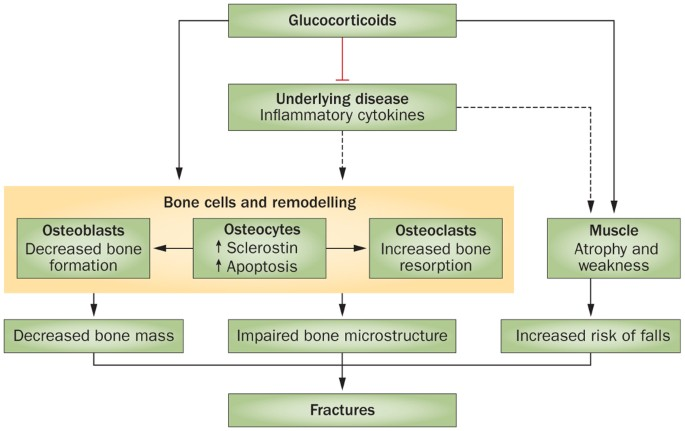 15++ How to prevent steroid induced osteoporosis ideas in 2021