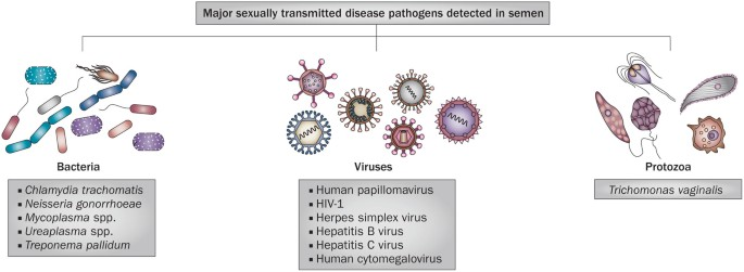 Male Infertility A Public Health Issue Caused By Sexually Transmitted Pathogens Nature Reviews Urology