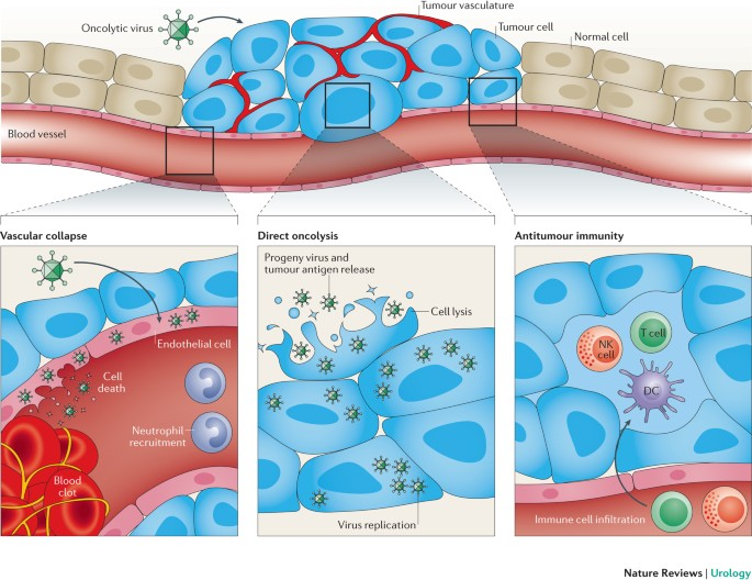 immunotherapy for prostate cancer australia)