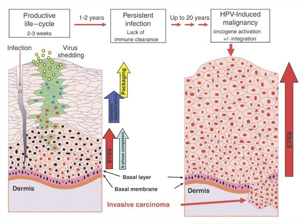 multiple papiloame pe tratamentul gâtului vanjski paraziti kod pasa