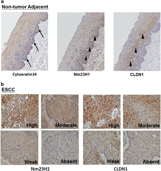 Nm23h1 Mediates Tumor Invasion In