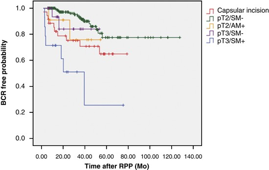 Impact Of Capsular Incision On Biochemical Recurrence After