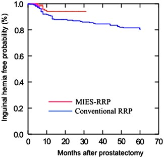 Lower Incidence Of Inguinal Hernia After Radical Prostatectomy