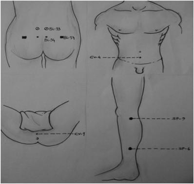 A prosztatitis duó kezelése