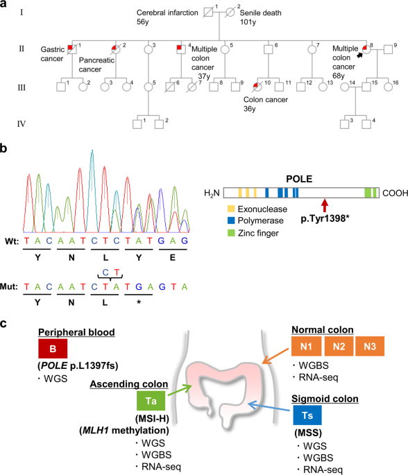 Development Of An Msi Positive Colon Tumor With Aberrant Dna Methylation In A Ppap Patient Journal Of Human Genetics
