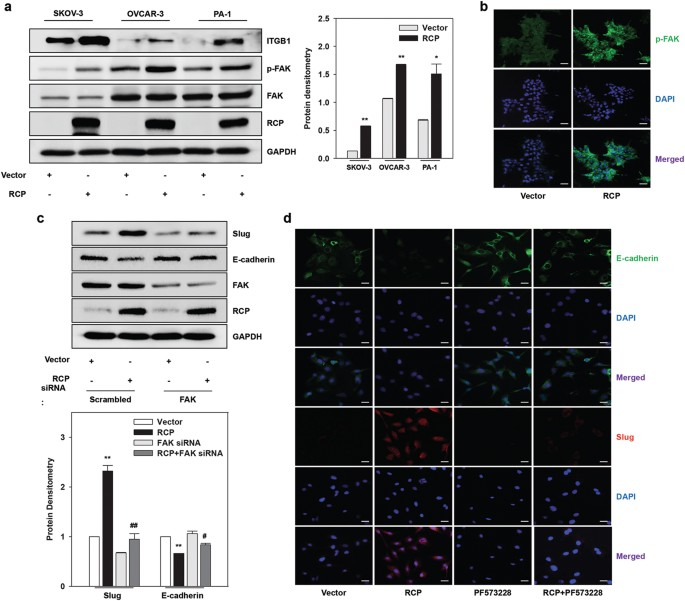 Rcp Induces Fak Phosphorylation And Ovarian Cancer Cell Invasion With Inhibition By Curcumin Experimental Molecular Medicine