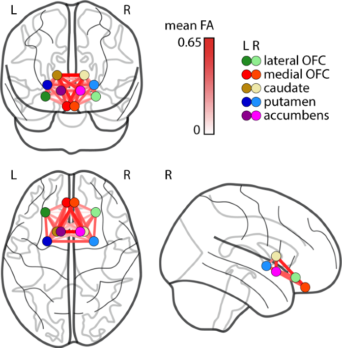 Higher BMI, but not obesity-related genetic polymorphisms, correlates with lower structural connectivity of the reward network in a population-based study