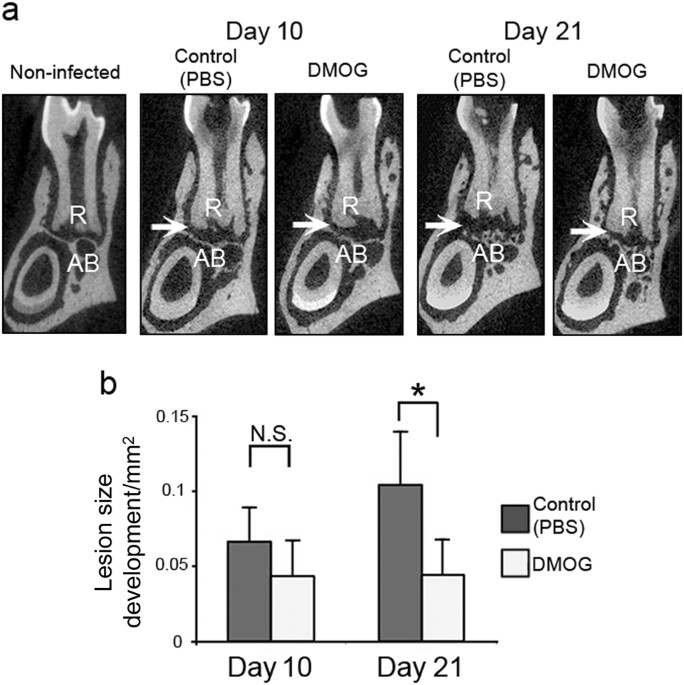 Activation of hypoxia-inducible factor 1 attenuates periapical ...