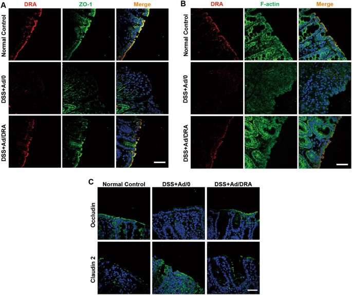 SLC26A3 (DRA) prevents TNF-alpha-induced barrier dysfunction and ...