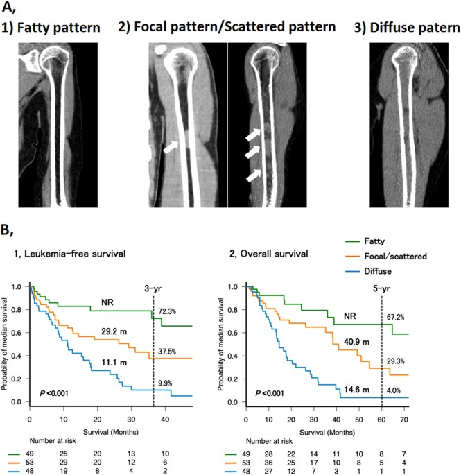 A Categorization Of Bone Marrow Abnormalities Appendicular Skeletons Detected By Low Dose Multidetector Computed Tomography 1 Fatty Pattern Uniformly