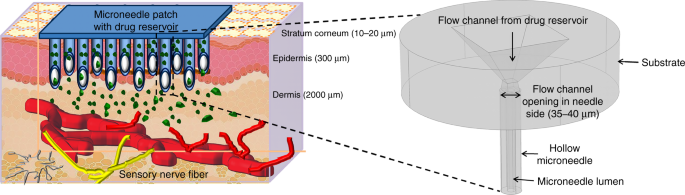 Glassy carbon microneedles—new transdermal drug delivery