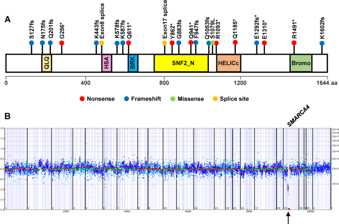 SMARCA4 inactivation defines a subset of undifferentiated uterine sarcomas with rhabdoid and small cell features and germline mutation association
