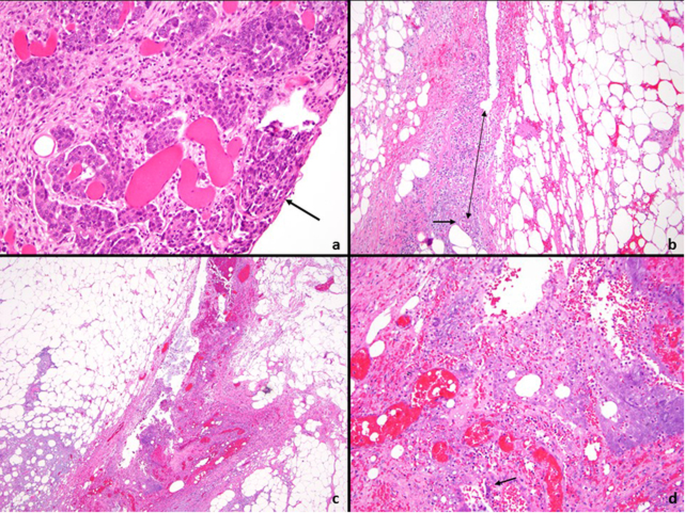 Challenges With Colorectal Cancer Staging Results Of An International Study Modern Pathology
