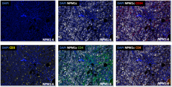 Multiparametric in situ imaging of NPM1-mutated acute myeloid leukemia reveals prognostically-relevant features of the marrow microenvironment