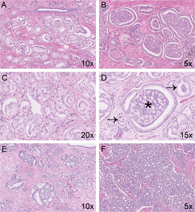 Clinicopathological characteristics of glomeruloid architecture in prostate cancer