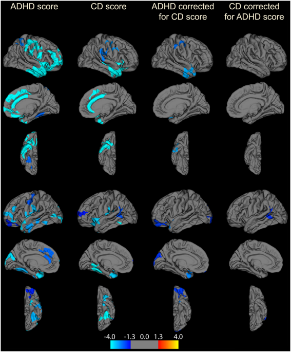An Exploratory Vertex Wise Analysis Was Performed Calculating Correlations Between GMV And ADHD CD Scores Across The Whole Brain
