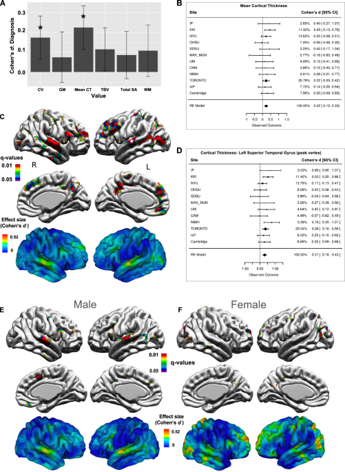 In Autism Brain Shows Unusual Thinning >> Large Scale Analyses Of The Relationship Between Sex Age And