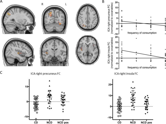 Habitual coffee drinkers display a distinct pattern of brain functional connectivity