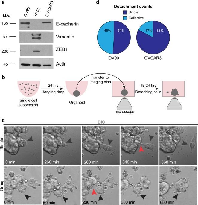 Multicellular detachment generates metastatic spheroids