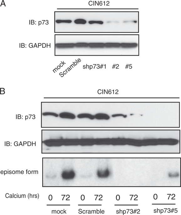 Topoisomerase IIβ-binding protein 1 activates expression of