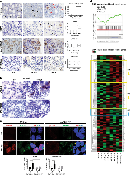 Addiction to DUSP1 protects JAK2V617F-driven polycythemia vera progenitors against inflammatory stress and DNA damage, allowing chronic proliferation