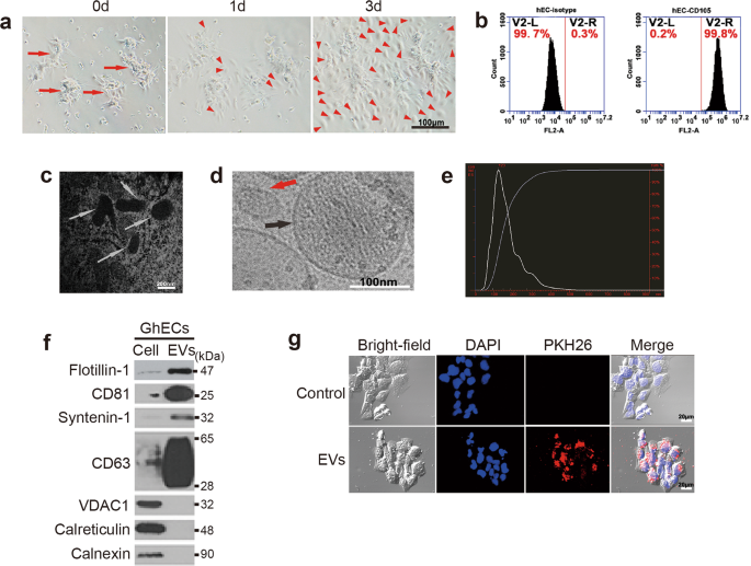 Glioma-associated human endothelial cell-derived extracellular