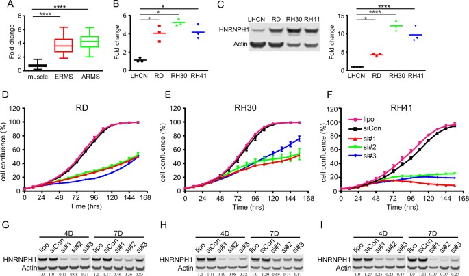 Hnrnph1 Is Required For Rhabdomyosarcoma Cell Growth And Survival