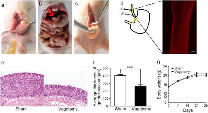 gastric cancer vagotomy)