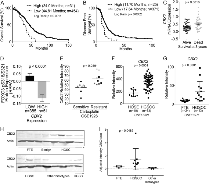 Cbx2 Identified As Driver Of Anoikis Escape And Dissemination In High Grade Serous Ovarian Cancer Oncogenesis
