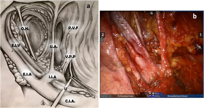Indication To Pelvic Lymph Nodes Dissection For Prostate Cancer The