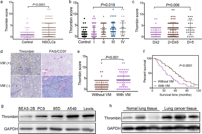 Thrombin is a therapeutic target for non-small-cell lung cancer to inhibit vasculogenic mimicry formation