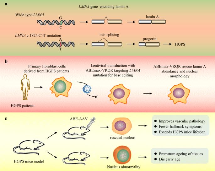 CRISPR base editor treats premature-aging syndrome