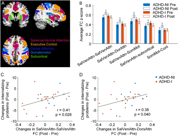Brain Computer Interface Based Intervention Re Normalizes Brain