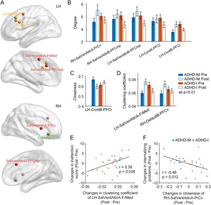 Brain-computer-interface-based intervention re-normalizes ...