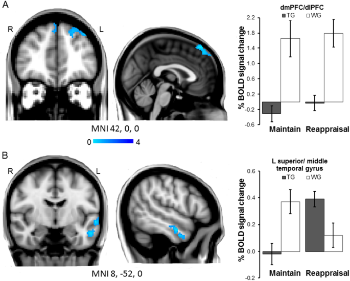 Early effects of exposure-based cognitive behaviour therapy