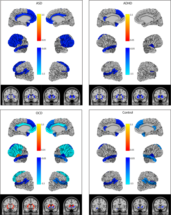 In Autism Brain Shows Unusual Thinning >> Structural Neuroimaging Correlates Of Social Deficits Are Similar In
