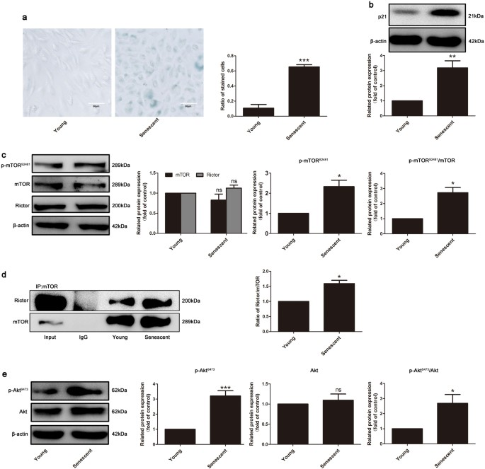 mtorc2 facilitates endothelial cell senescence by suppressing nrf2