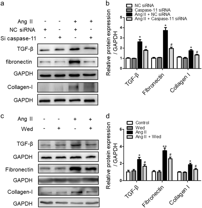 caspase 11 promotes renal fibrosis by stimulating il 1β maturation