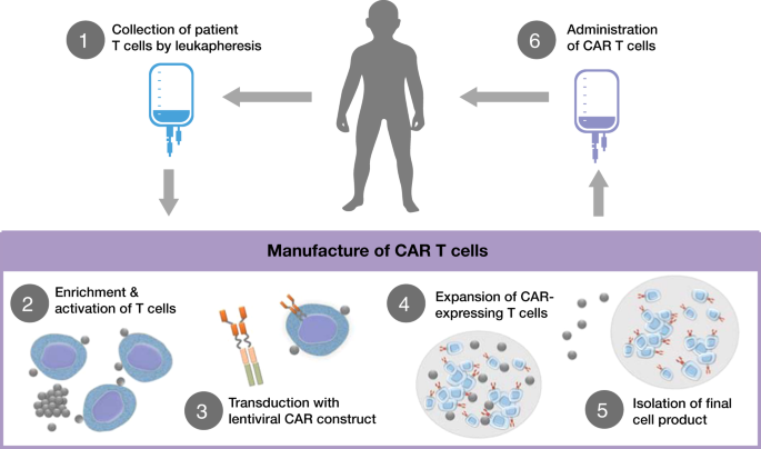 The journey to CAR T cell therapy: the pediatric and young adult experience with relapsed or ...