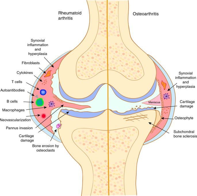 mi az osteoarthritis