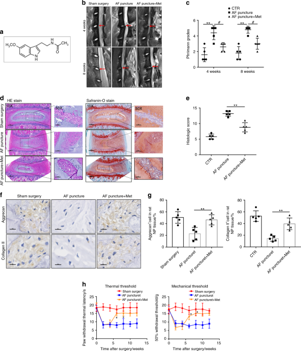 Melatonin alleviates intervertebral disc degeneration by disrupting the IL-1β/NF-κB-NLRP3 inflammasome positive feedback loop