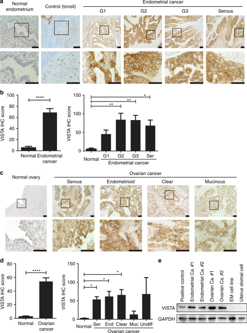 VISTA expressed in tumour cells regulates T cell function