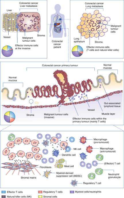 Harnessing The Innate Immune System And Local Immunological Microenvironment To Treat Colorectal Cancer British Journal Of Cancer