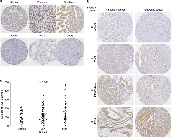 HHLA2 is expressed in pancreatic and ampullary cancers and increased expression is associated with better post-surgical prognosis