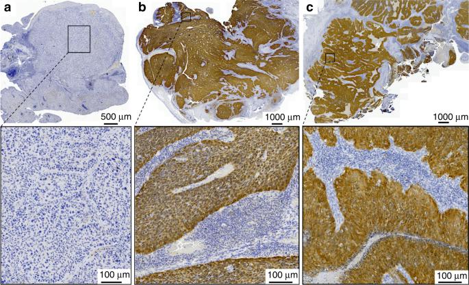 humán papillomavírus p16 expressziója