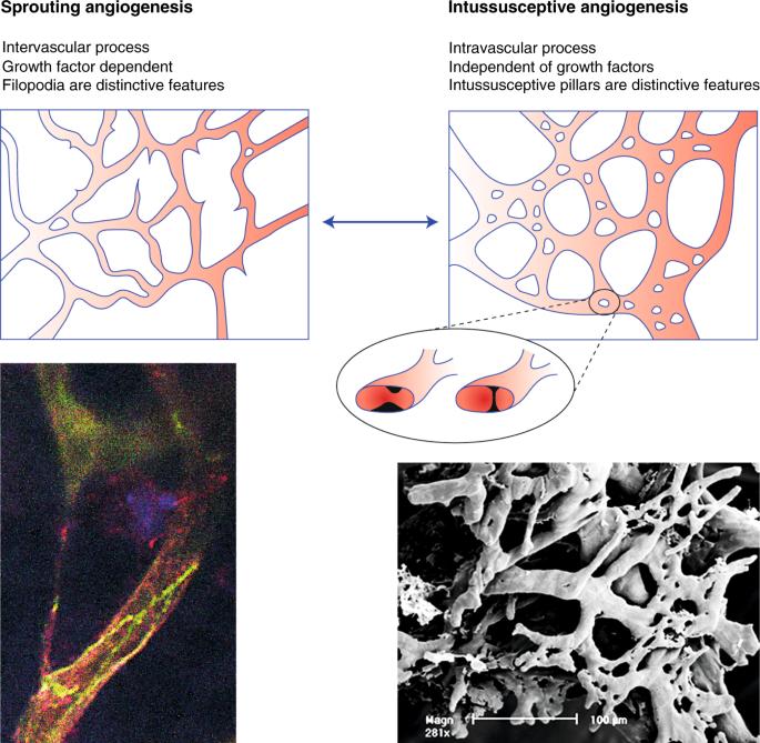 varicoză vasculare mesh)