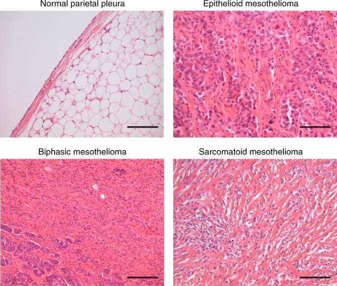 biphasic mesothelioma